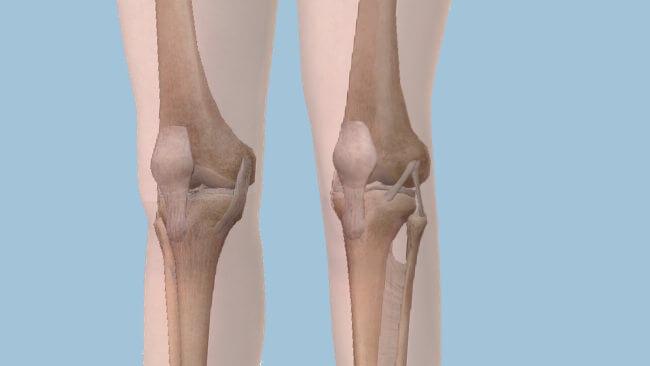 knee thigh anatomy